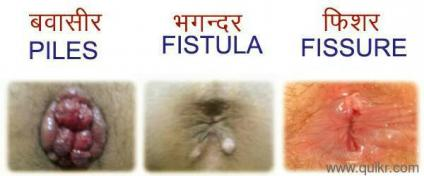 Anal fissure treatment in ayurveda
